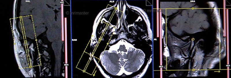Мрт в височно-челюстного сустава может ли при хроническом тонзиллите болеть суставы
